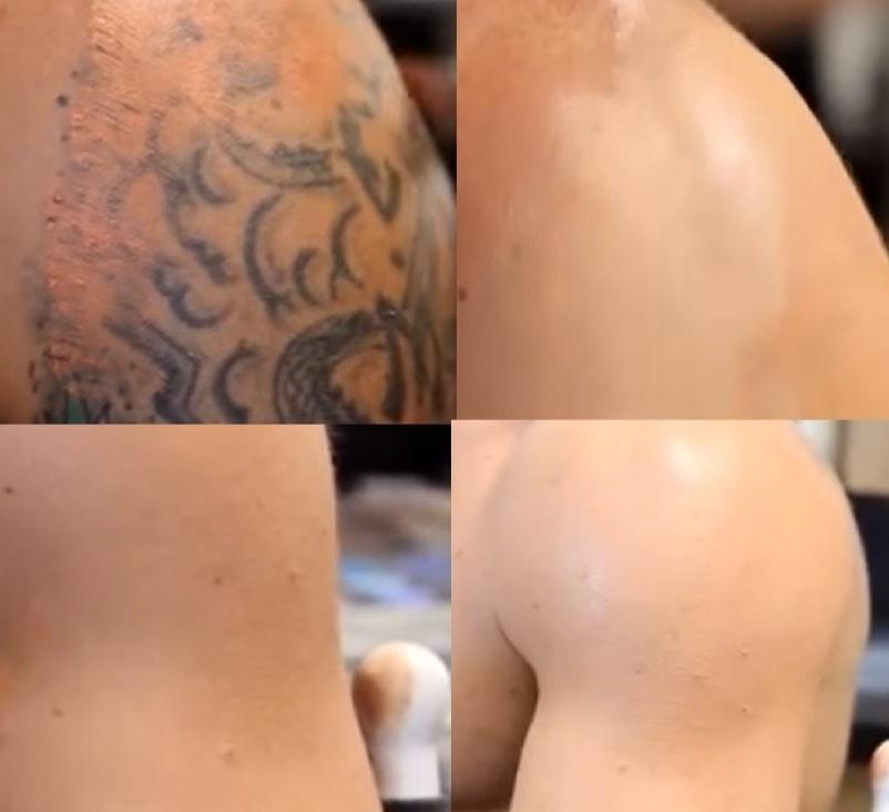 come coprire il tatuaggio con il make up passo dopo passo
