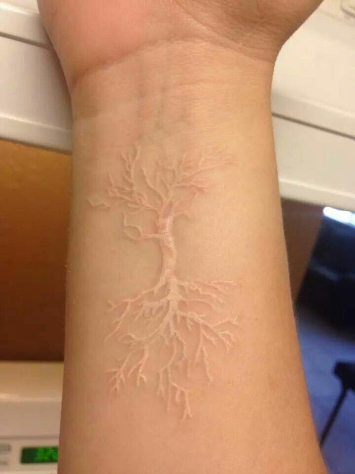 scarificazione, cicatrice decorativa come e dove farla
