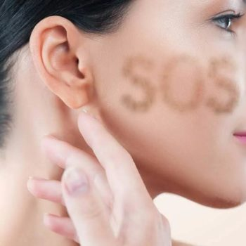 cause e cura iperpigmentazione