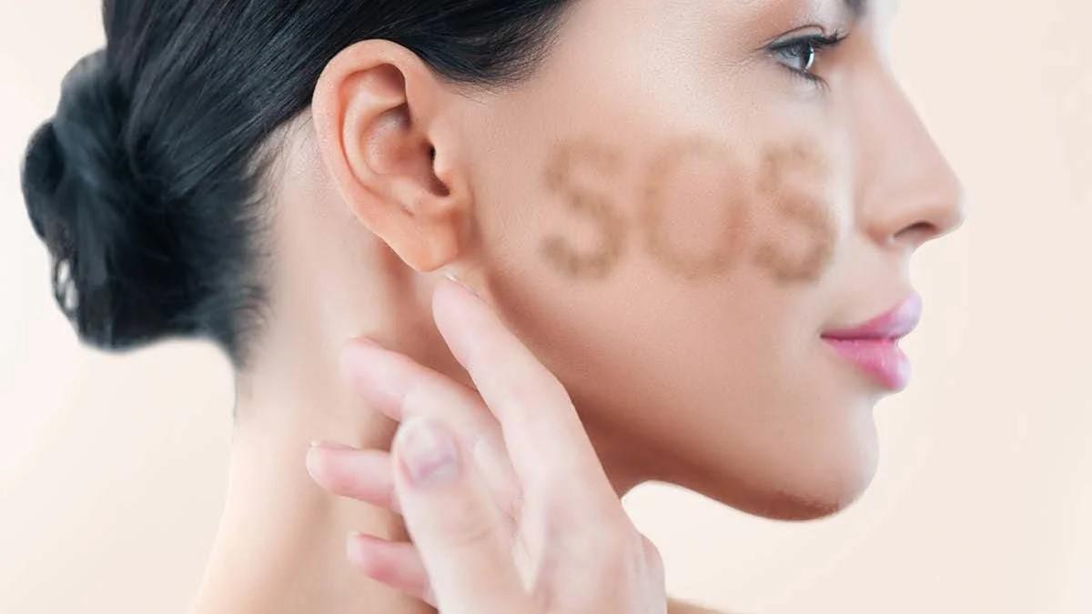 cause e cura dell iperpigmentazione