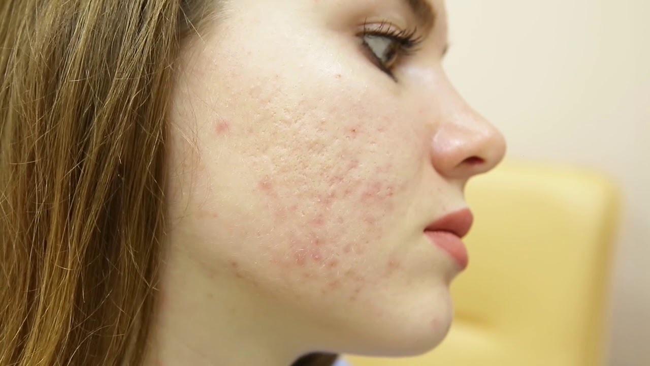 trattamento delle cicatrici da acne