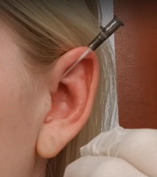 daith piercing come si fa
