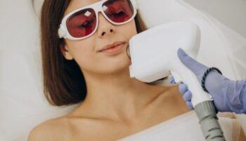 epilazione laser diodo come funziona